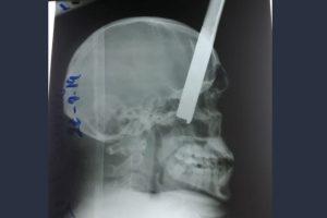 radiografia hombre herido con una varilla cabeza cerebro masa encefalica GENT