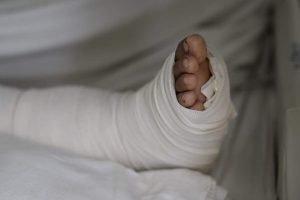 heridas en el pie por petardos cityam COM