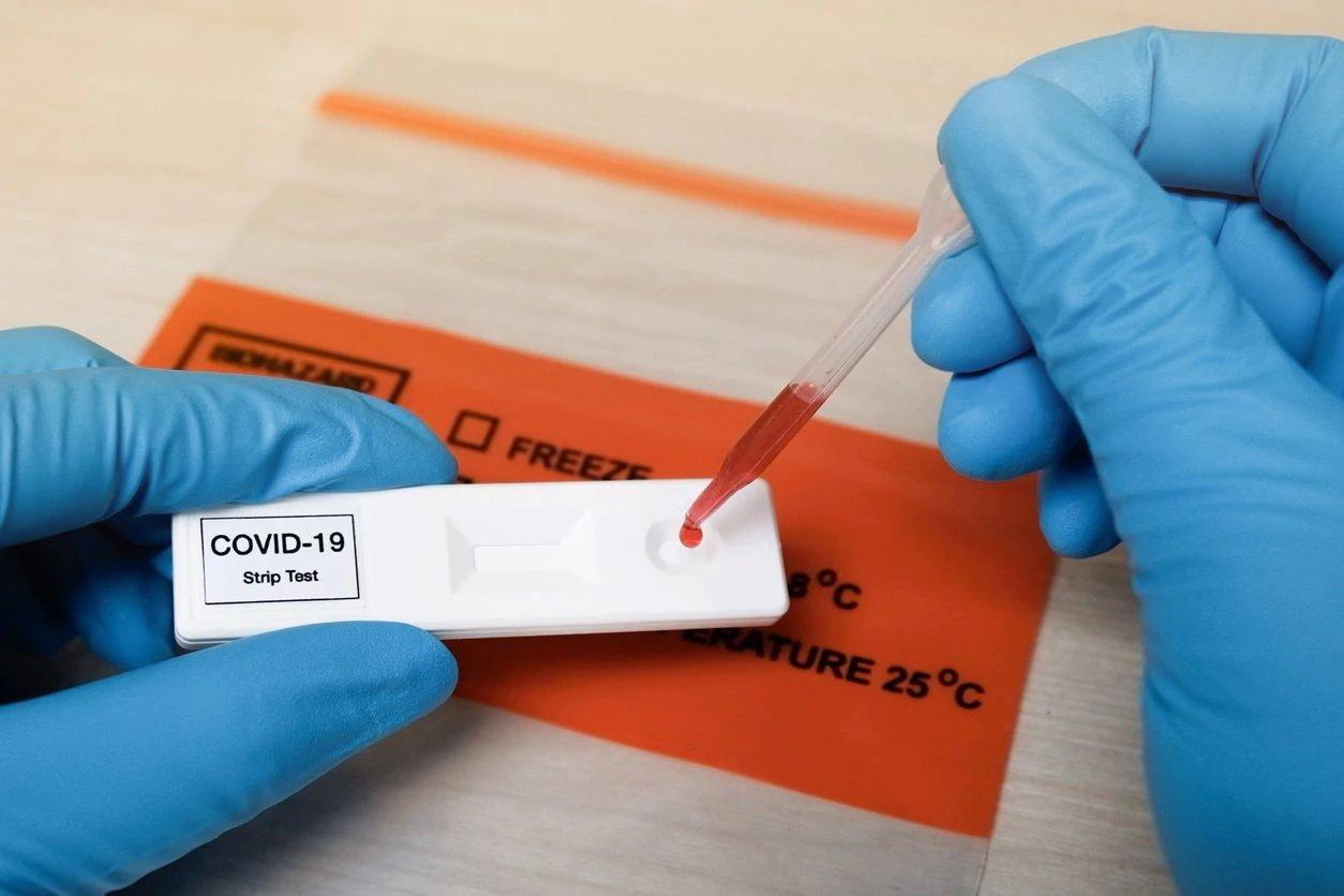 test reactivo covid laboratorio 07