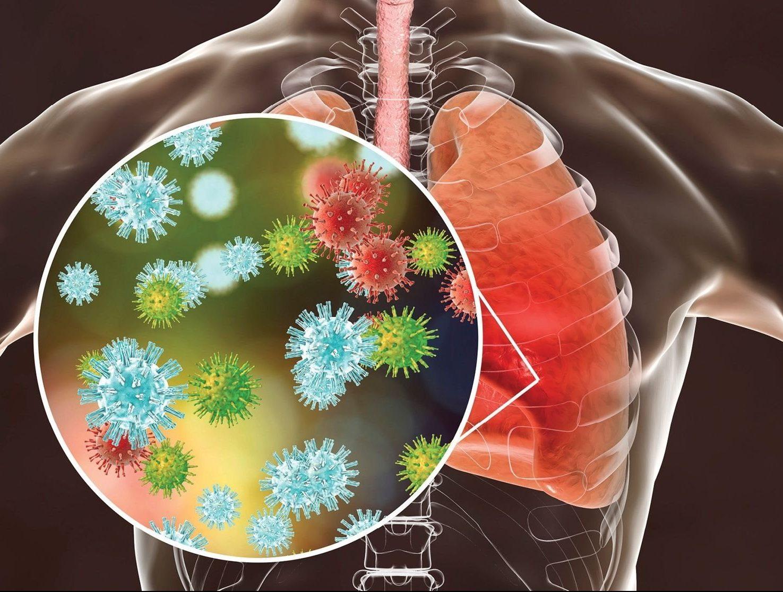 pulmon salud enfermedad post covid